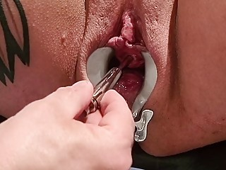CrazyFetishCouple - Hot piss session on the gyno chair